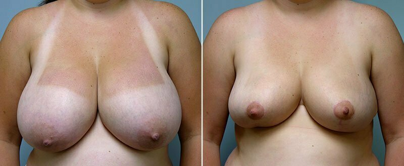 breast-reduction-14207-39a-conway