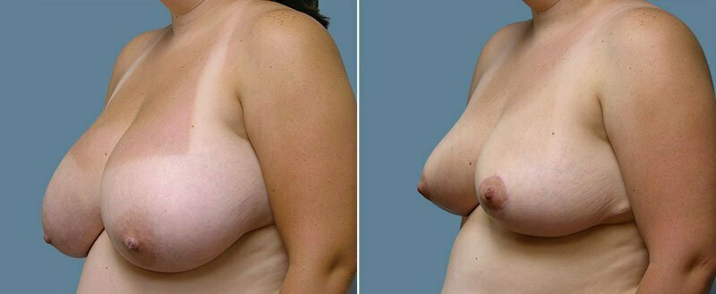 breast-reduction-14207-39b-conway