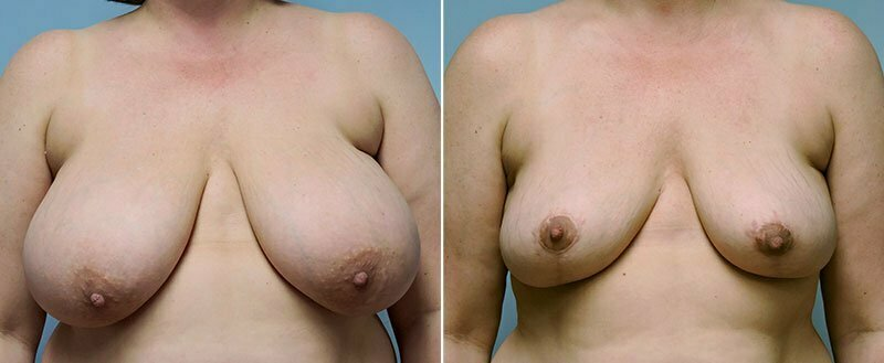 breast-reduction-14207-3a-conway
