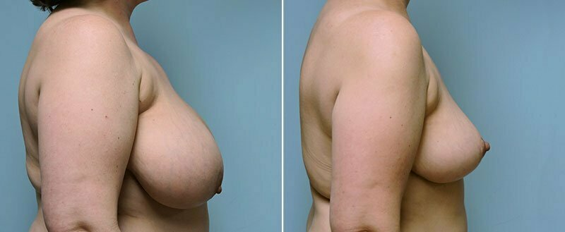 breast-reduction-14207-3c-conway