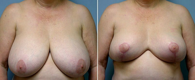 breast-reduction-14207-43a-conway