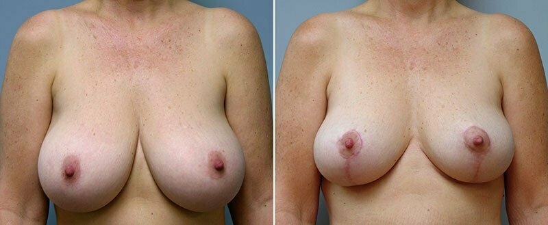 breast-reduction-14207-7a-conway