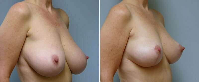 breast-reduction-14207-7b-conway