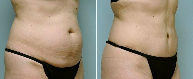 tummy-tuck-14305-7b-conway
