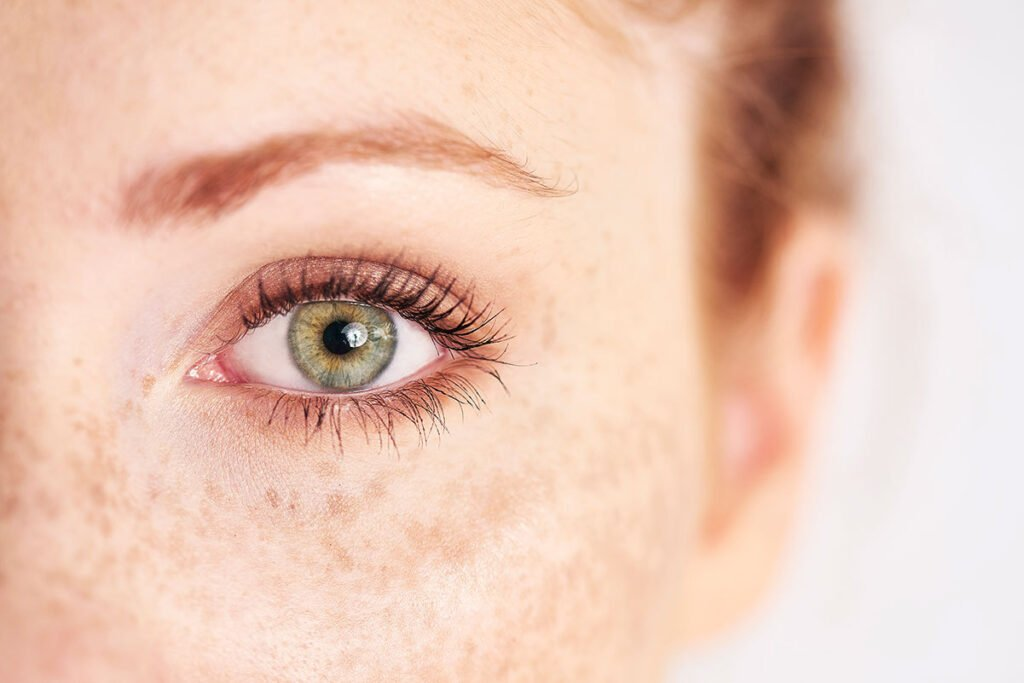 Woman Get Best Results from Her Eyelid Surgery Adding Non-Surgical Treatments